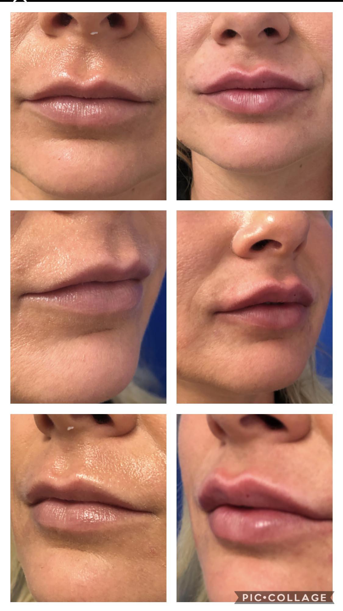 Juvéderm® Volbella XC - Face It Botox Bar